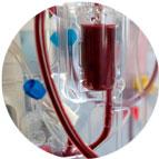Hemodiálise | Chocair Médicos