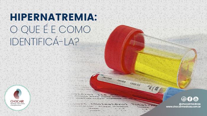 A Imagem Mostra Um Tubo Com Urina E Um Com Sangue.
