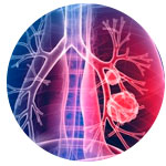 Pneumonia | Chocair Médicos