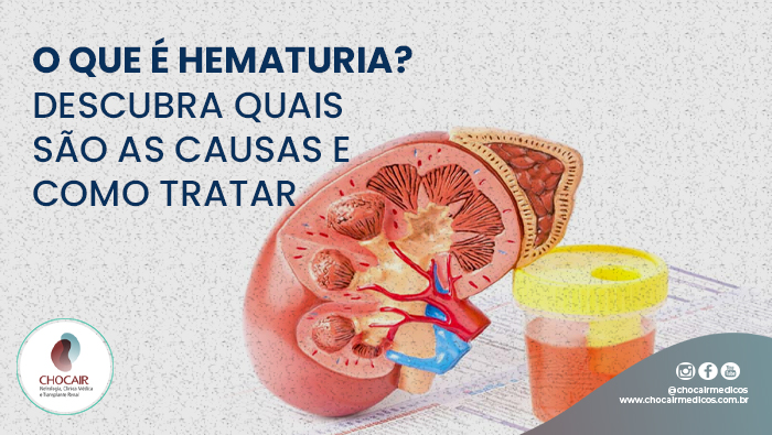 A Imagem Mostra O Órgão Bexiga De Plástico E Ao Lado Tem Um Pote Com Um Líquido Vermelho Representando Sangue Na Urina.