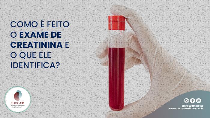 A Imagem Mostra Uma Mão Com O Indicador E O Polegar Segurando Um Tubo De Sangue.